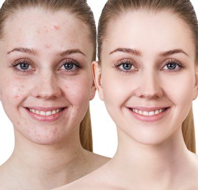Acne befor after female
