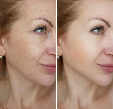 Cosmetic injectable before and after