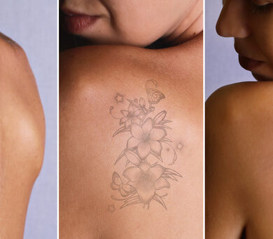 Tattoo removal before after photo